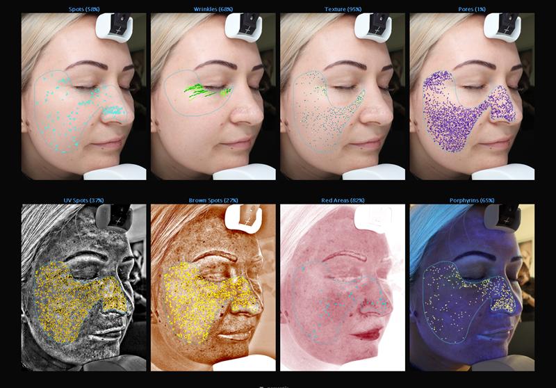 Visia analiza kože Bagatin